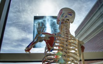 A photo of a fake skeleton holding an x-ray up to a window